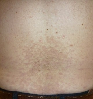 How Does Methotrexate Work For Psoriasis