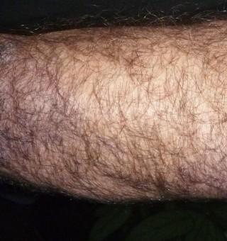 treatment of scalp psoriasis
